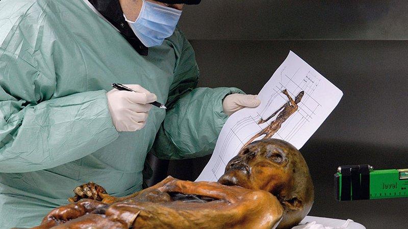 Buz Adam Ötzi aslında donarak mı öldü?