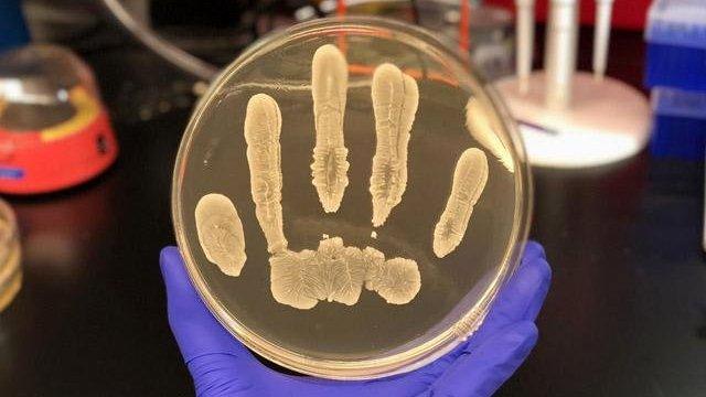 Faydalı cilt bakterileri cilt kanserine karşı koruyor!